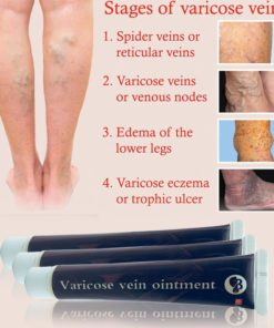 varicose-veins-treatment-cream-2