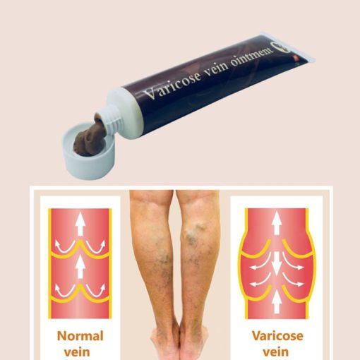 varicose-veins-treatment-cream